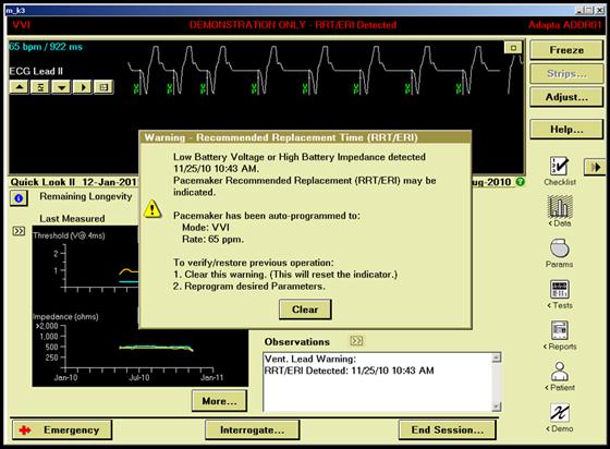 Meas Lock ERI Example 1 Image 1